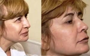 ирина александровна после операции сразу