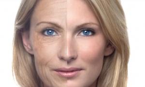 избавиться от морщин на лице